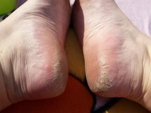 voeten test