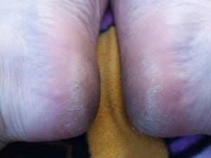 voeten klaar voor de zomer